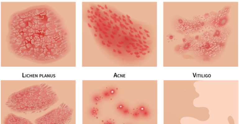 Inflammatory Skin Disorders