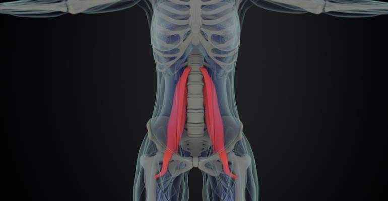 Psoas Syndrome and Gut Health
